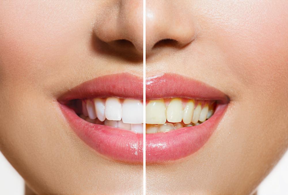 60706 Dentist