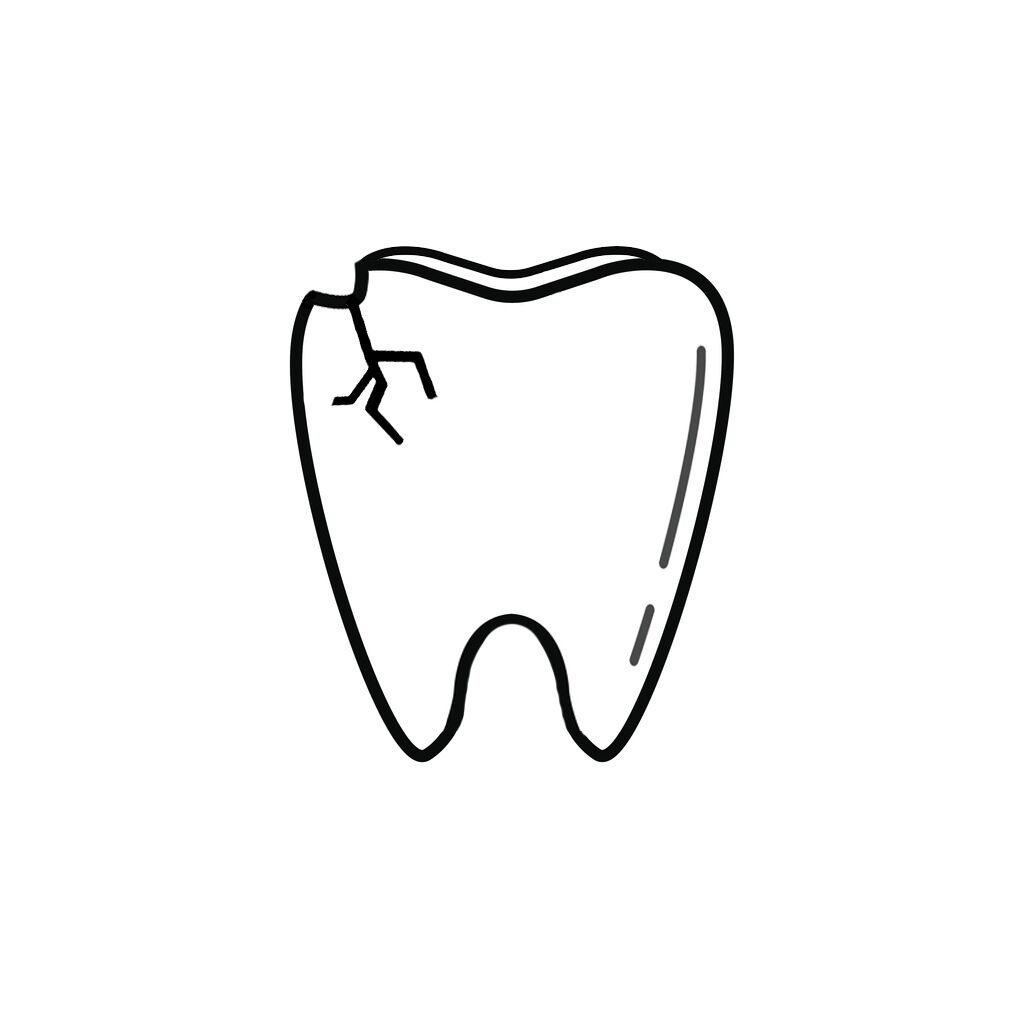 Norridge IL Dentist | I Chipped a Tooth! What Can I Do?